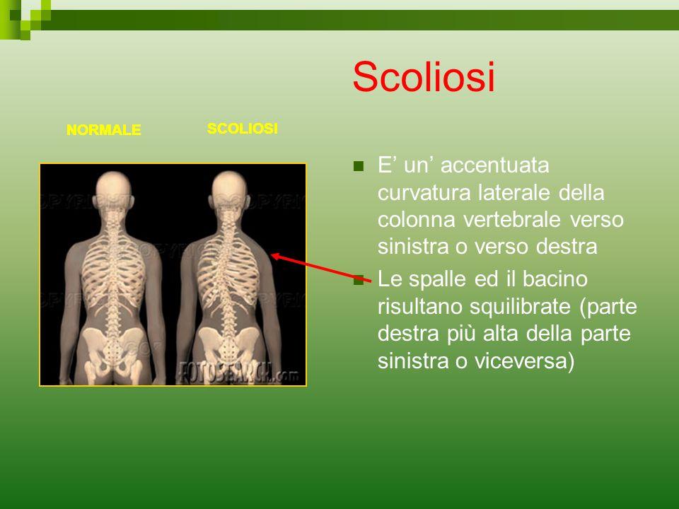 Scoliosi E un accentuata curvatura laterale della colonna vertebrale verso sinistra o verso destra Le spalle ed il bacino risultano squilibrate (parte
