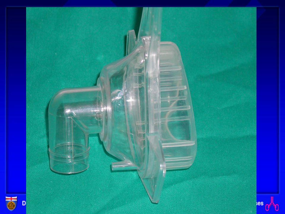 VENTILAZIONE MECCANICA Invasiva: protesizzazione della trachea Non invasiva: utilizzo di diverse interfacce NASALE ORONASALE FACCIALE BOCCAGLIO NASAL