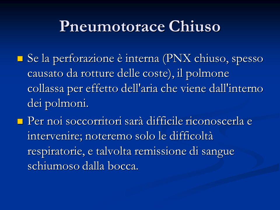 Pneumotorace Chiuso Se la perforazione è interna (PNX chiuso, spesso causato da rotture delle coste), il polmone collassa per effetto dell'aria che vi
