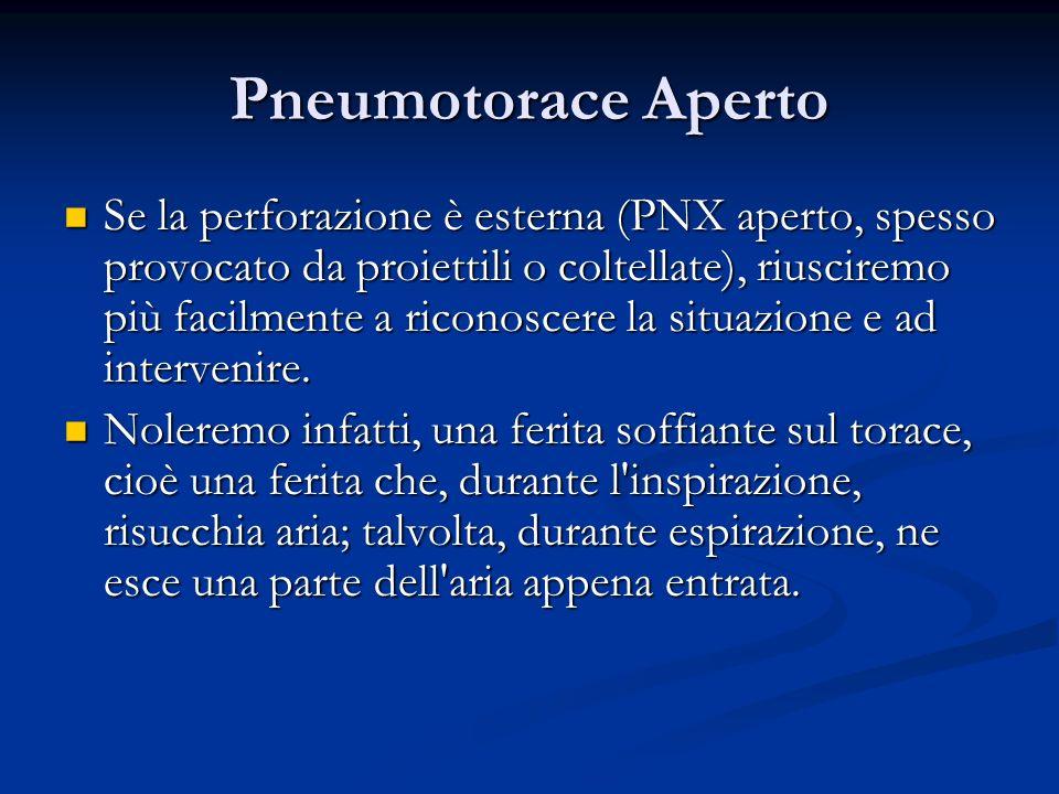 Pneumotorace Aperto Se la perforazione è esterna (PNX aperto, spesso provocato da proiettili o coltellate), riusciremo più facilmente a riconoscere la