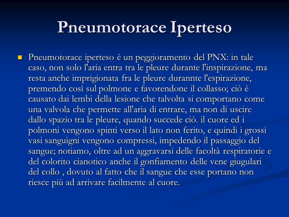 Pneumotorace Iperteso Pneumotorace iperteso è un peggioramento del PNX: in tale caso, non solo l'aria entra tra le pleure durante l'inspirazione, ma r