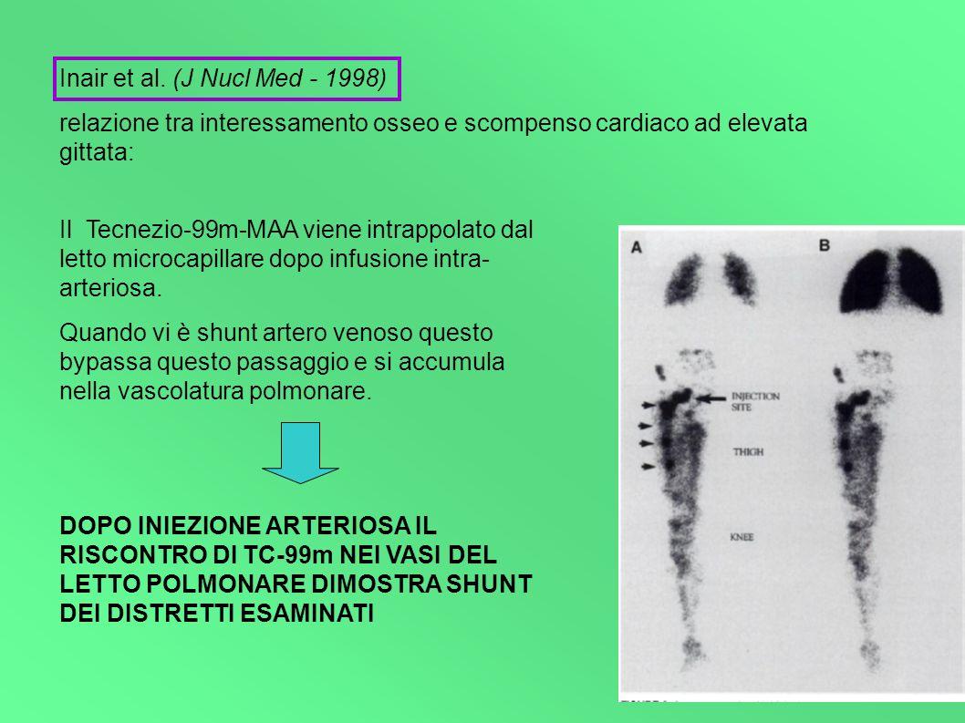 Inair et al. (J Nucl Med - 1998) relazione tra interessamento osseo e scompenso cardiaco ad elevata gittata: Il Tecnezio-99m-MAA viene intrappolato da
