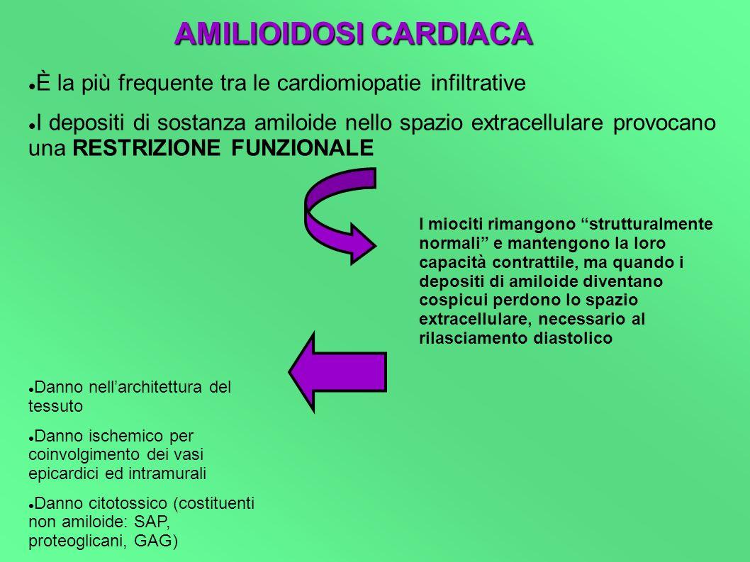 AMILIOIDOSI CARDIACA È la più frequente tra le cardiomiopatie infiltrative I depositi di sostanza amiloide nello spazio extracellulare provocano una R