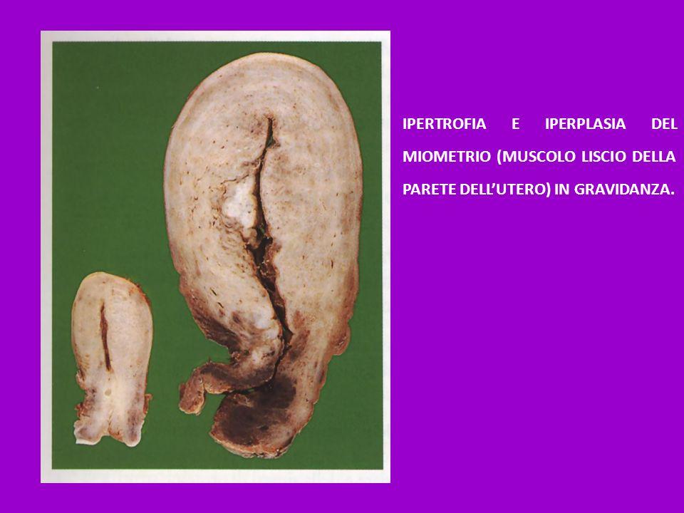 IPERTROFIA E IPERPLASIA DEL MIOMETRIO (MUSCOLO LISCIO DELLA PARETE DELLUTERO) IN GRAVIDANZA.