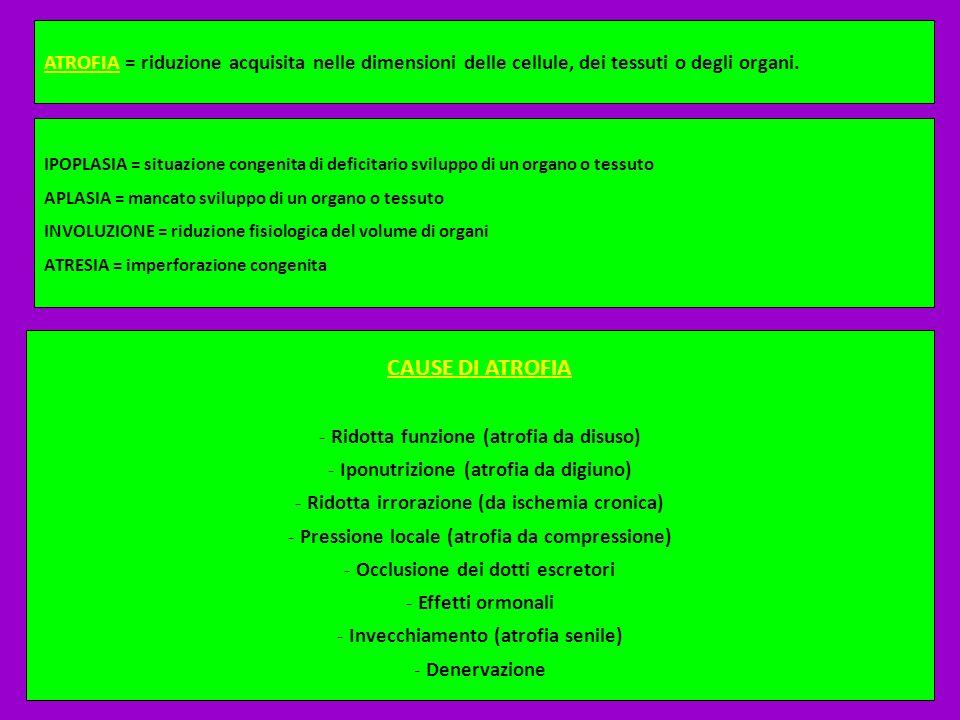 ATROFIA = riduzione acquisita nelle dimensioni delle cellule, dei tessuti o degli organi. IPOPLASIA = situazione congenita di deficitario sviluppo di
