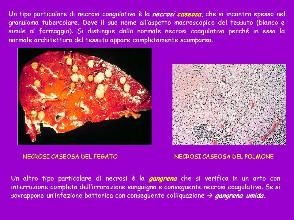 Un tipo particolare di necrosi coagulativa è la necrosi caseosa, che si incontra spesso nel granuloma tubercolare. Deve il suo nome allaspetto macrosc