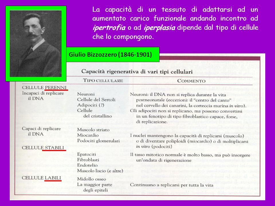 Un tipo particolare di necrosi coagulativa è la necrosi caseosa, che si incontra spesso nel granuloma tubercolare.