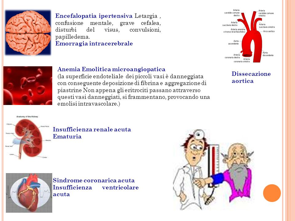 Encefalopatia ipertensiva Letargia, confusione mentale, grave cefalea, disturbi del visus, convulsioni, papilledema. Emorragia intracerebrale Anemia E