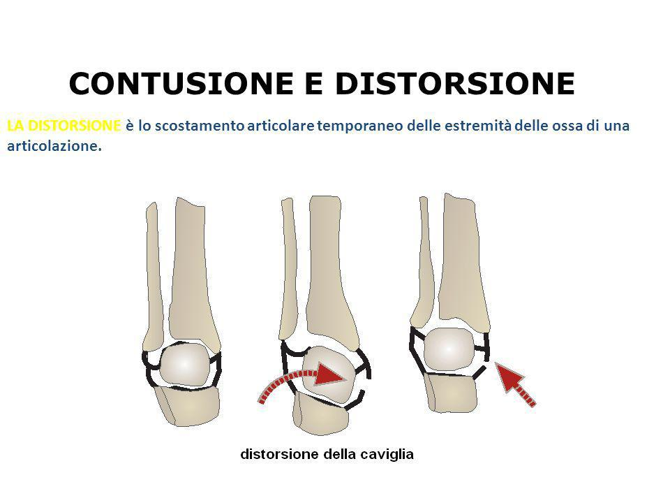 LA DISTORSIONE è lo scostamento articolare temporaneo delle estremità delle ossa di una articolazione. CONTUSIONE E DISTORSIONE