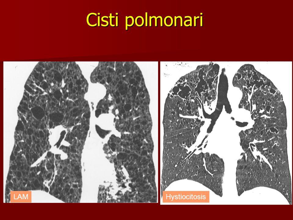Cisti polmonari HystiocitosisLAM