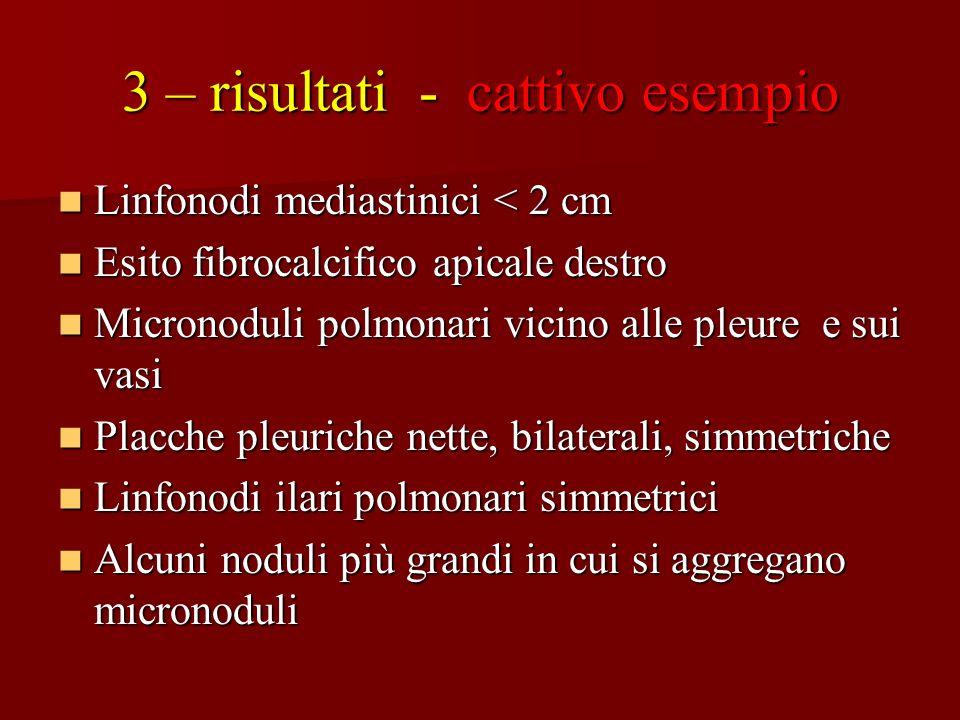 3 – risultati - cattivo esempio Linfonodi mediastinici < 2 cm Linfonodi mediastinici < 2 cm Esito fibrocalcifico apicale destro Esito fibrocalcifico a