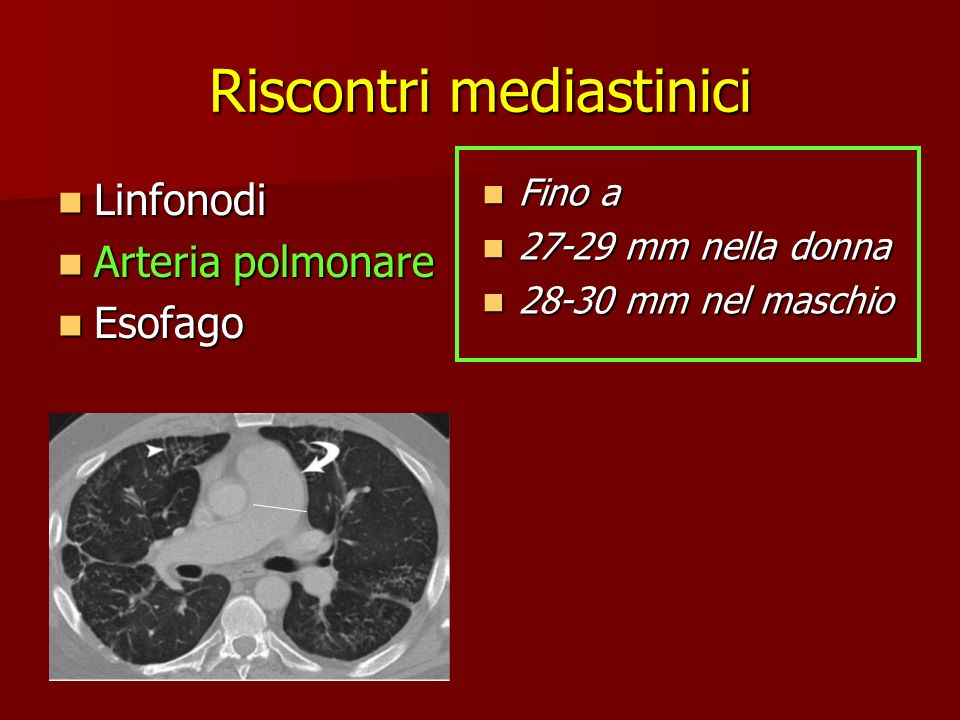 Riscontri mediastinici Linfonodi Linfonodi Arteria polmonare Arteria polmonare Esofago Esofago Fino a Fino a 27-29 mm nella donna 27-29 mm nella donna