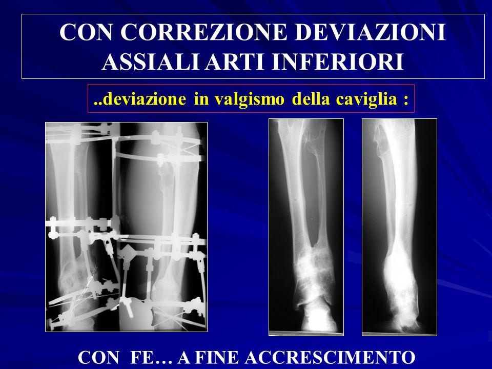 CON CORREZIONE DEVIAZIONI ASSIALI ARTI INFERIORI..deviazione in valgismo della caviglia : CON FE… A FINE ACCRESCIMENTO