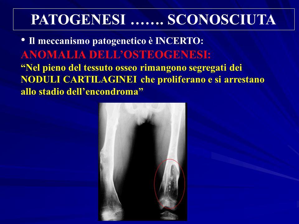 PATOGENESI ……. SCONOSCIUTA Il meccanismo patogenetico è INCERTO: ANOMALIA DELLOSTEOGENESI: Nel pieno del tessuto osseo rimangono segregati dei NODULI