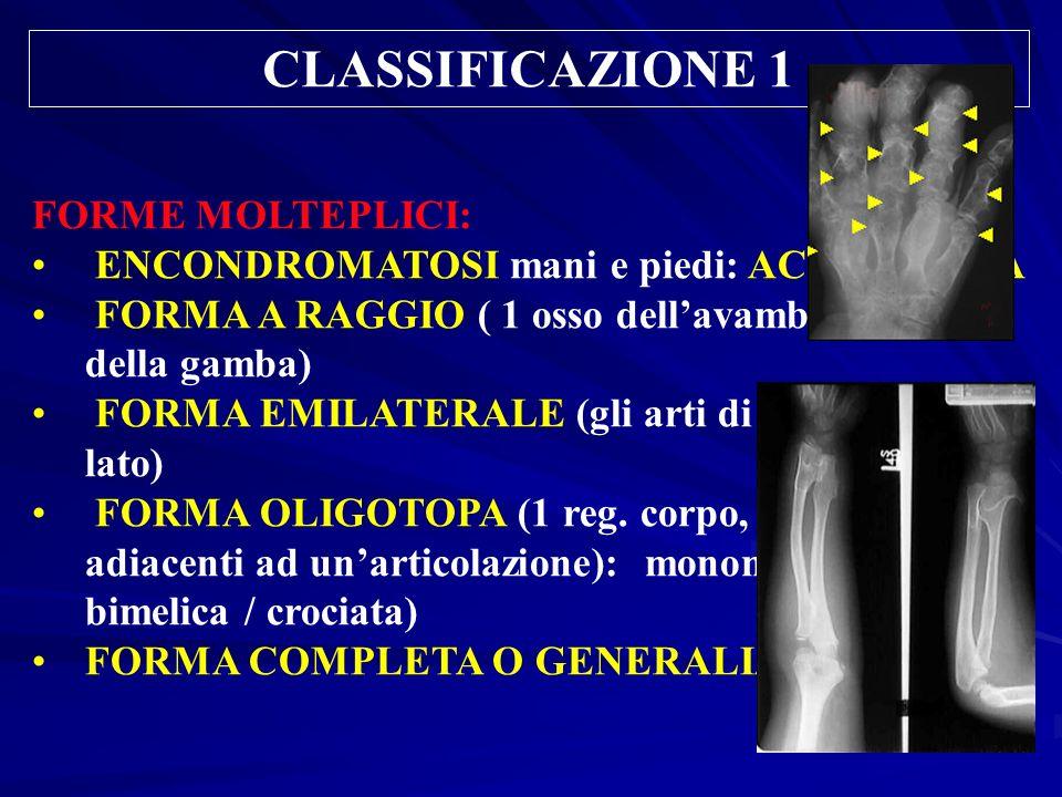 CLASSIFICAZIONE 1 FORME MOLTEPLICI: ENCONDROMATOSI mani e piedi: ACROFORMA FORMA A RAGGIO ( 1 osso dellavambraccio o della gamba) FORMA EMILATERALE (g