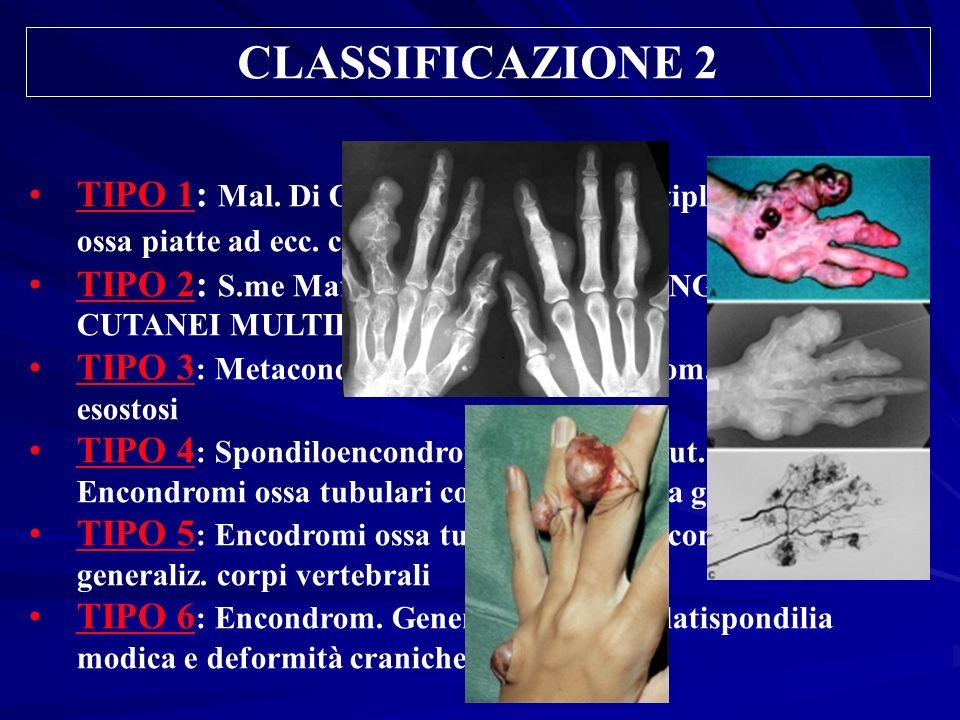 CLASSIFICAZIONE 2 TIPO 1: Mal. Di Ollier: Encondromi multipli ossa lunghe e ossa piatte ad ecc. cranio e vertebre TIPO 2: S.me Maffucci (Tipo 1 Con EM