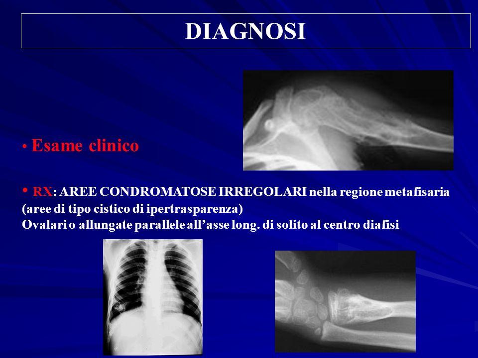 DIAGNOSI Esame clinico RX: AREE CONDROMATOSE IRREGOLARI nella regione metafisaria (aree di tipo cistico di ipertrasparenza) Ovalari o allungate parall