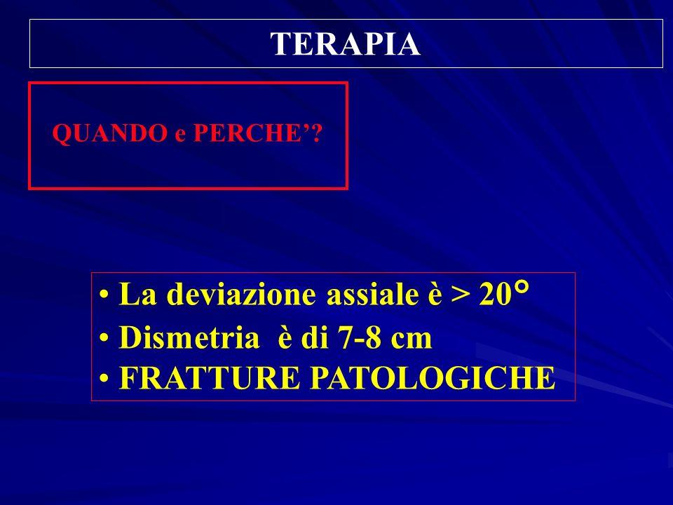 TERAPIA QUANDO e PERCHE? La deviazione assiale è > 20° Dismetria è di 7-8 cm FRATTURE PATOLOGICHE
