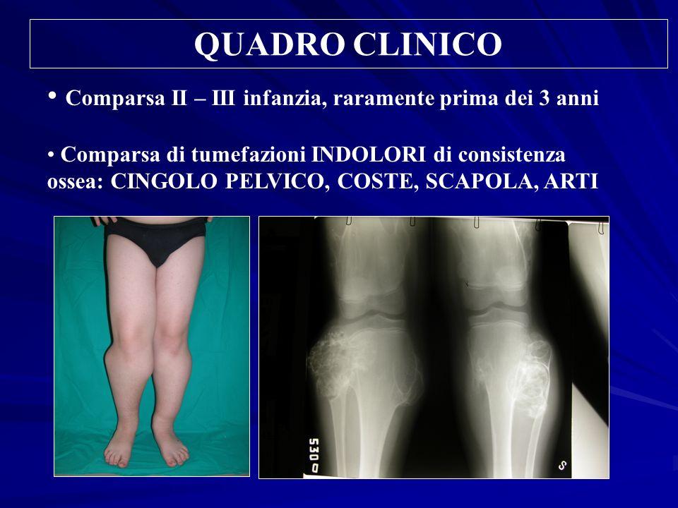 QUADRO CLINICO Comparsa II – III infanzia, raramente prima dei 3 anni Comparsa di tumefazioni INDOLORI di consistenza ossea: CINGOLO PELVICO, COSTE, S