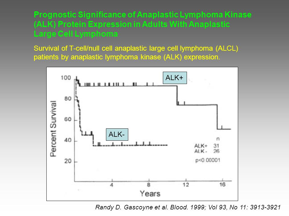 Prognostic Significance of Anaplastic Lymphoma Kinase (ALK) Protein Expression in Adults With Anaplastic Large Cell Lymphoma Randy D.