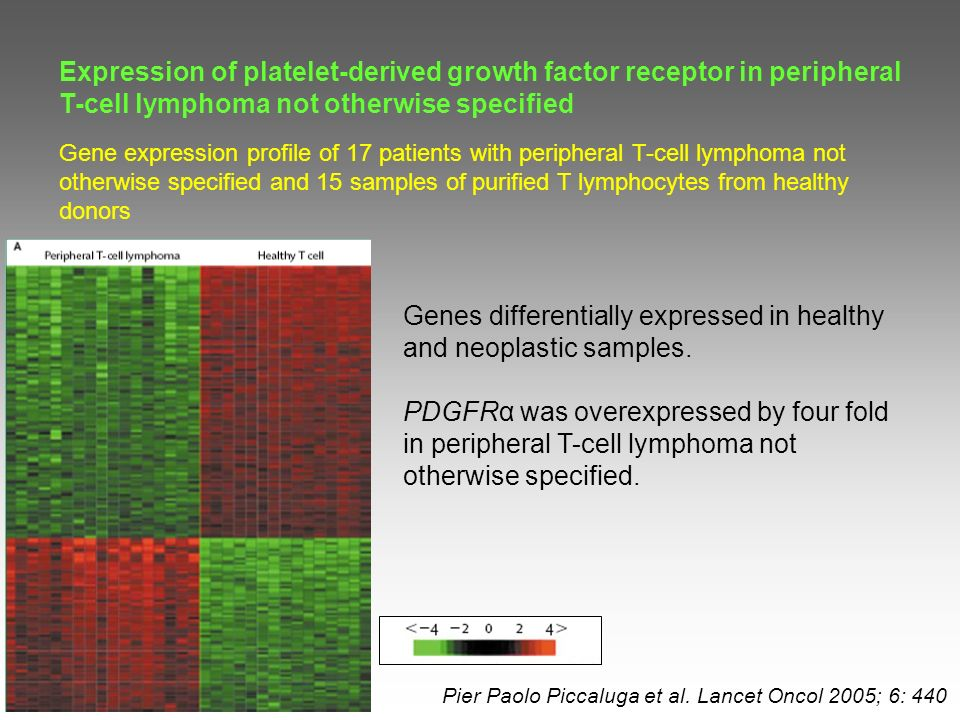 On immunoalkaline-phosphatase staining, neoplastic cells showed that the cytoplasm of all tested cases were positive for PDFGR.