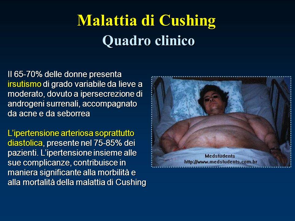 Malattia di Cushing Quadro clinico Il 65-70% delle donne presenta irsutismo di grado variabile da lieve a moderato, dovuto a ipersecrezione di androge