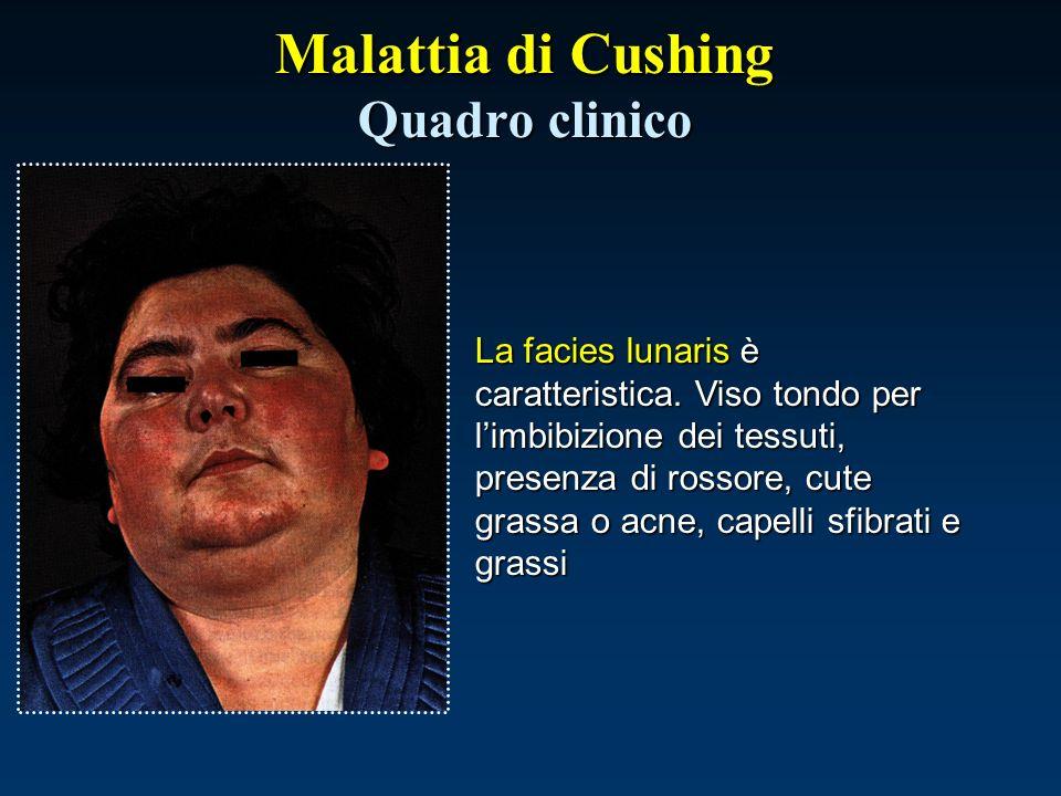 Malattia di Cushing Quadro clinico La facies lunaris è caratteristica. Viso tondo per limbibizione dei tessuti, presenza di rossore, cute grassa o acn