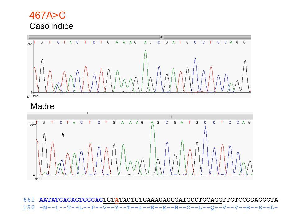 467A>C Caso indice Madre 661 AATATCACACTGCCAGTGTATACTCTGAAAGAGCGATGCCTCCAGGTTGTCCGGAGCCTA 150 -N--I--T--L--P--V--Y--T--L--K--E--R--C--L--Q--V--V--R--S