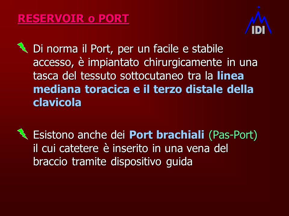 Di norma il Port, per un facile e stabile accesso, è impiantato chirurgicamente in una tasca del tessuto sottocutaneo tra la linea mediana toracica e