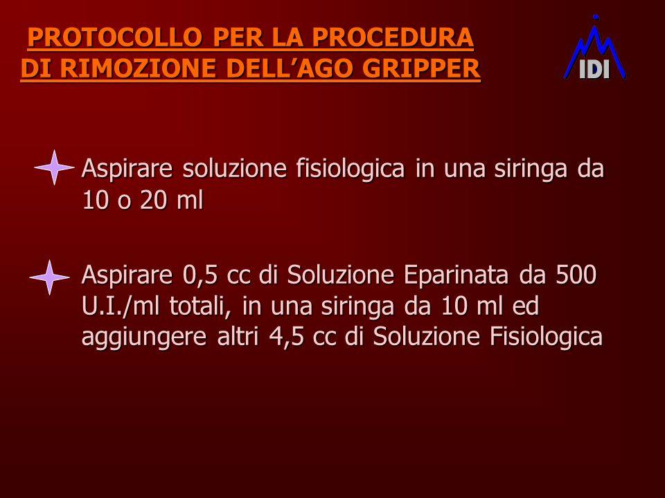 PROTOCOLLO PER LA PROCEDURA DI RIMOZIONE DELLAGO GRIPPER Aspirare soluzione fisiologica in una siringa da 10 o 20 ml Aspirare 0,5 cc di Soluzione Epar