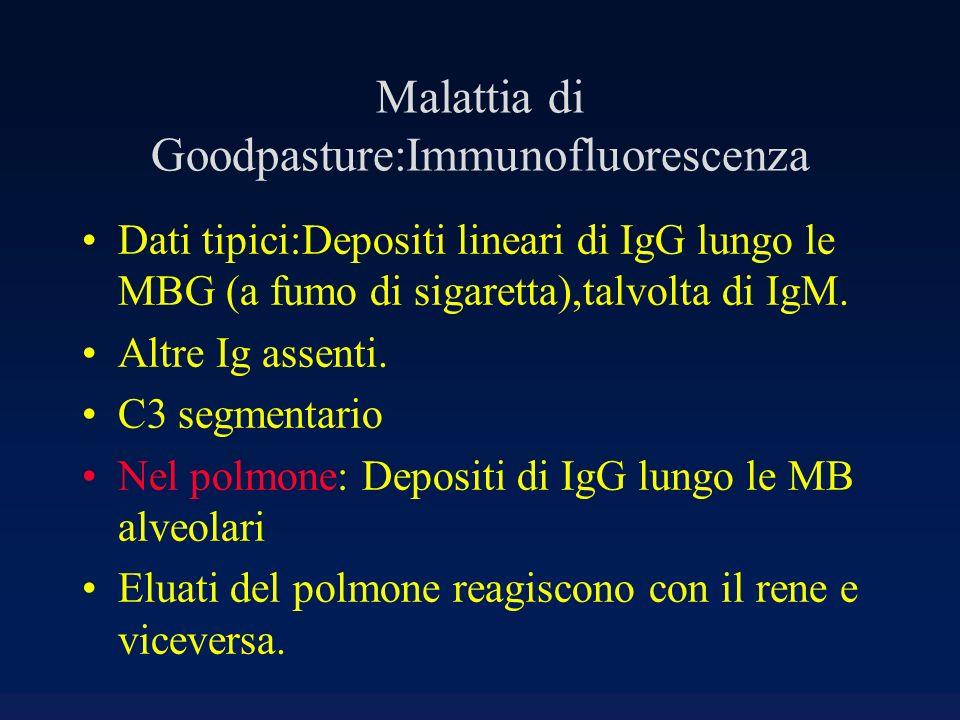 Malattia di Goodpasture:Immunofluorescenza Dati tipici:Depositi lineari di IgG lungo le MBG (a fumo di sigaretta),talvolta di IgM. Altre Ig assenti. C