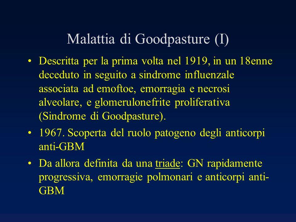 Malattia di Goodpasture (I) Descritta per la prima volta nel 1919, in un 18enne deceduto in seguito a sindrome influenzale associata ad emoftoe, emorr