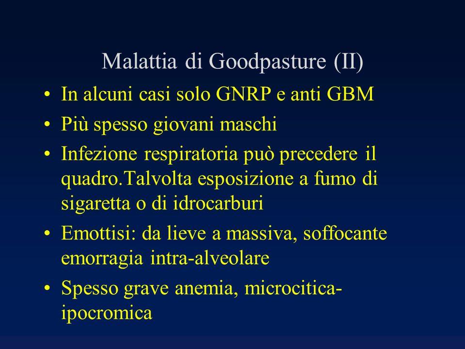 Malattia di Goodpasture (II) In alcuni casi solo GNRP e anti GBM Più spesso giovani maschi Infezione respiratoria può precedere il quadro.Talvolta esp