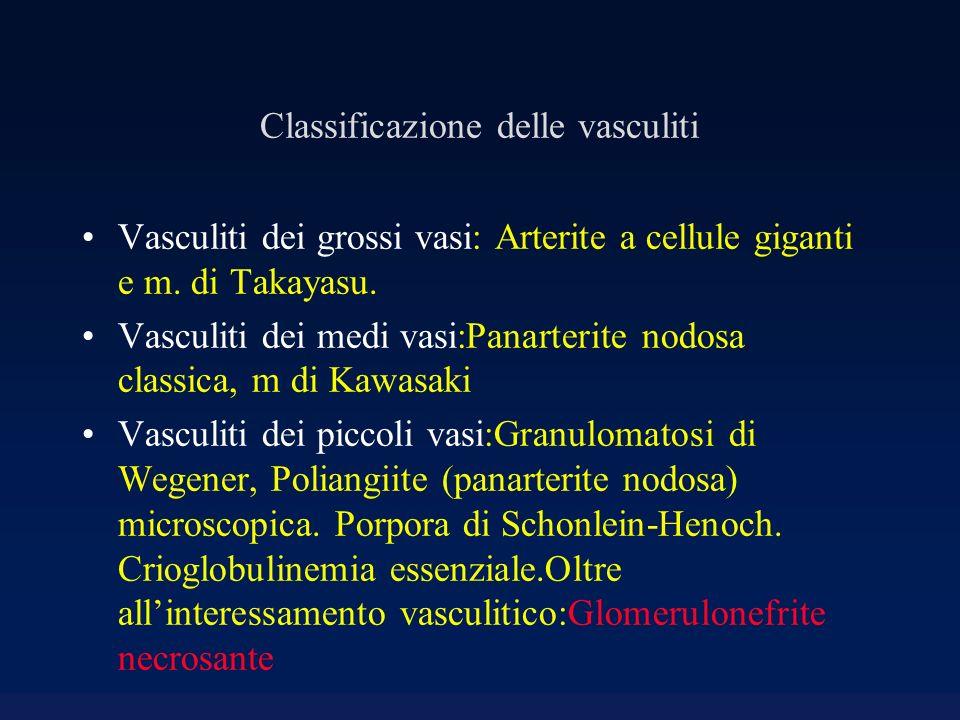Classificazione delle vasculiti Vasculiti dei grossi vasi: Arterite a cellule giganti e m. di Takayasu. Vasculiti dei medi vasi:Panarterite nodosa cla