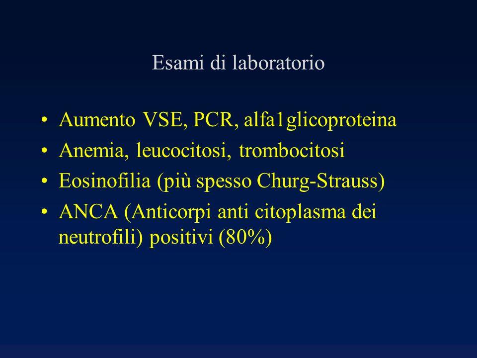 Esami di laboratorio Aumento VSE, PCR, alfa1glicoproteina Anemia, leucocitosi, trombocitosi Eosinofilia (più spesso Churg-Strauss) ANCA (Anticorpi ant