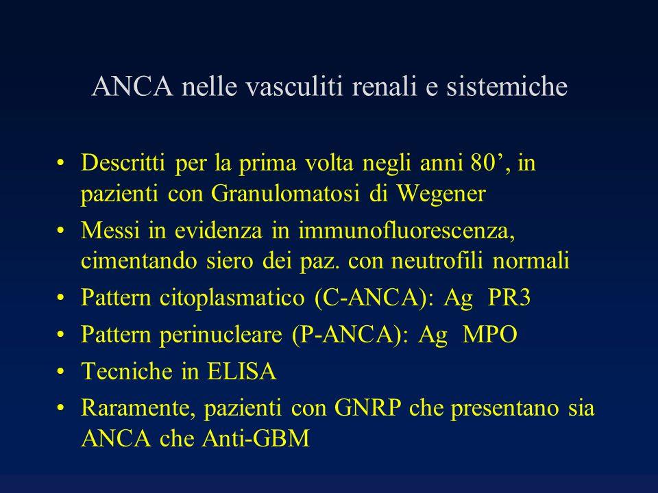 ANCA nelle vasculiti renali e sistemiche Descritti per la prima volta negli anni 80, in pazienti con Granulomatosi di Wegener Messi in evidenza in imm