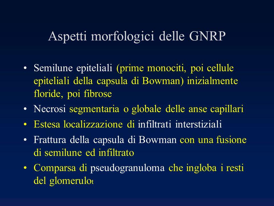 Aspetti morfologici delle GNRP Semilune epiteliali (prime monociti, poi cellule epiteliali della capsula di Bowman) inizialmente floride, poi fibrose