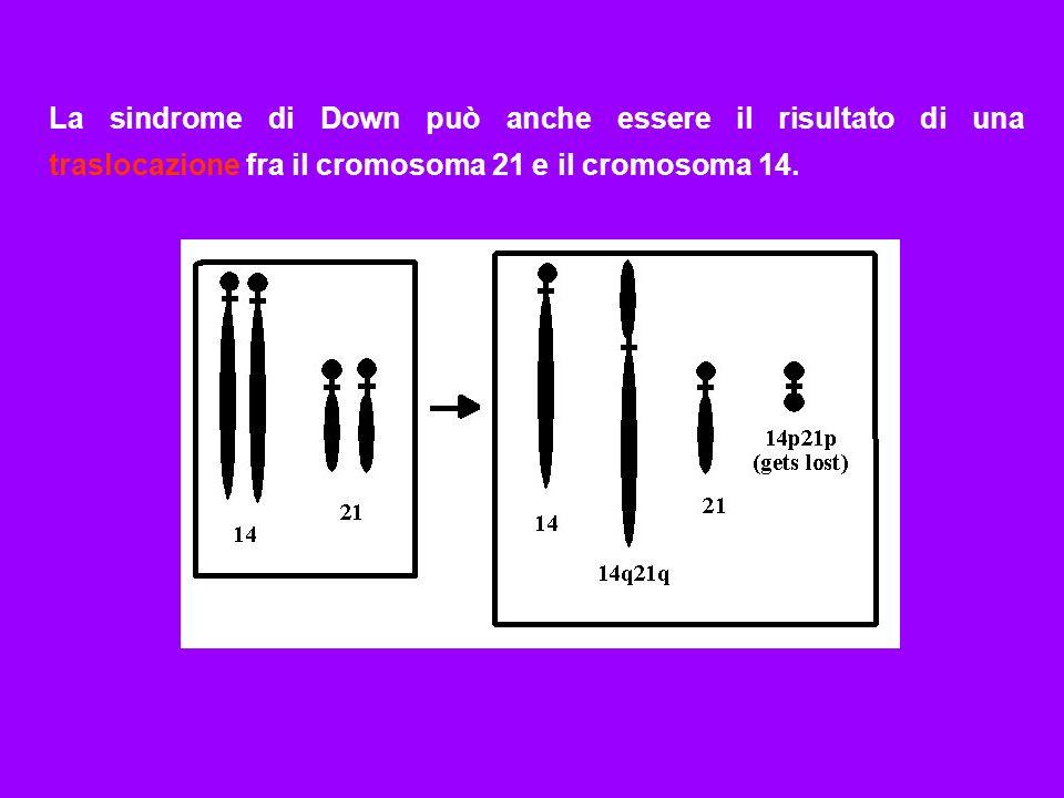 La sindrome di Down può anche essere il risultato di una traslocazione fra il cromosoma 21 e il cromosoma 14.
