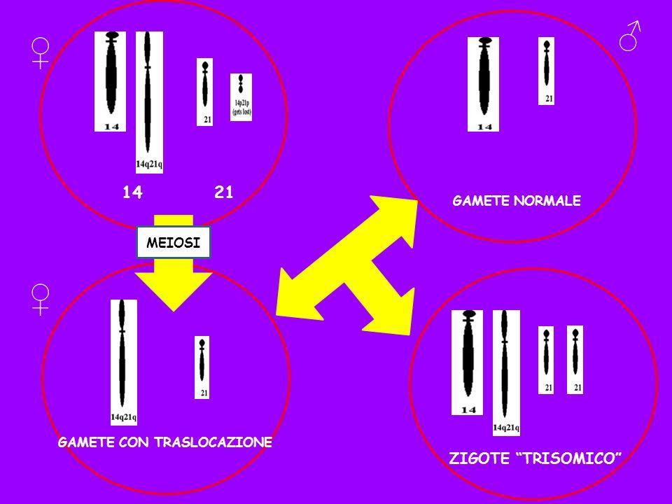 14 21 GAMETE CON TRASLOCAZIONE MEIOSI GAMETE NORMALE ZIGOTE TRISOMICO