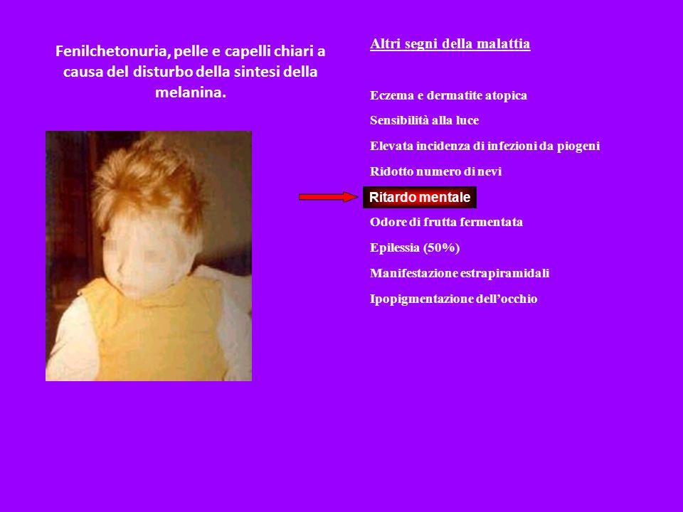 Fenilchetonuria, pelle e capelli chiari a causa del disturbo della sintesi della melanina. Altri segni della malattia Eczema e dermatite atopica Sensi