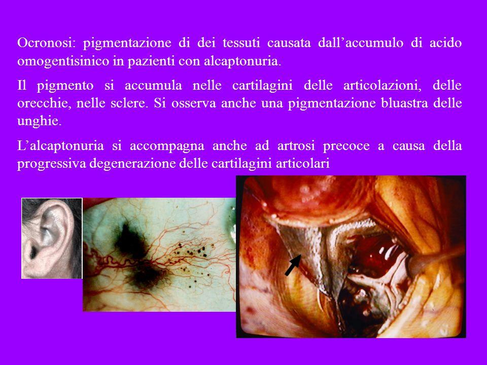 Ocronosi: pigmentazione di dei tessuti causata dallaccumulo di acido omogentisinico in pazienti con alcaptonuria. Il pigmento si accumula nelle cartil