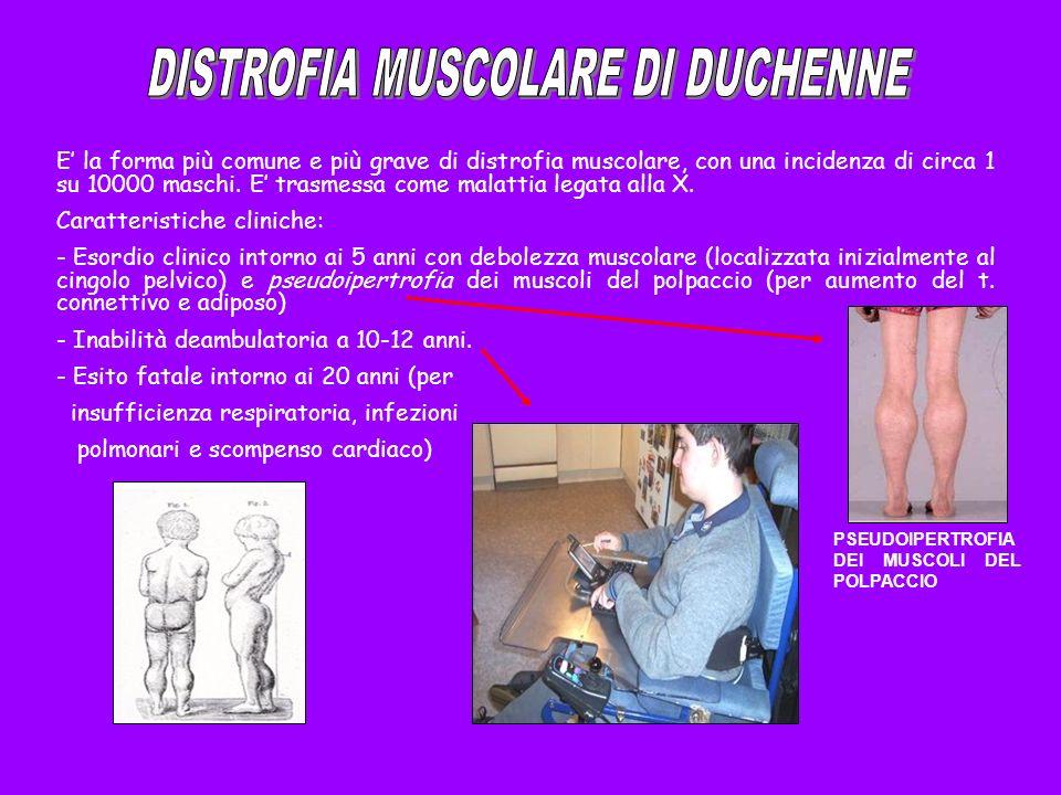 E la forma più comune e più grave di distrofia muscolare, con una incidenza di circa 1 su 10000 maschi. E trasmessa come malattia legata alla X. Carat