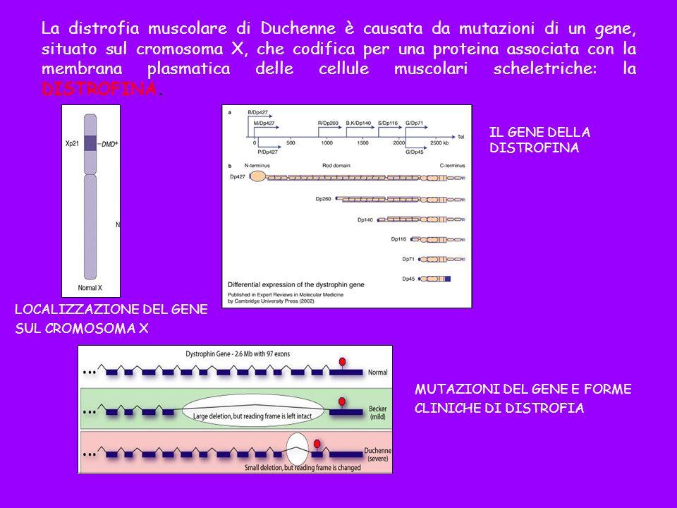 La distrofia muscolare di Duchenne è causata da mutazioni di un gene, situato sul cromosoma X, che codifica per una proteina associata con la membrana