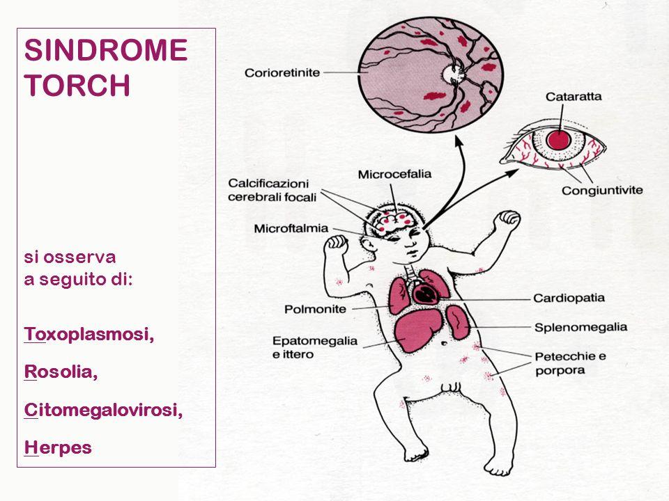 SINDROME TORCH si osserva a seguito di: Toxoplasmosi, Rosolia, Citomegalovirosi, Herpes