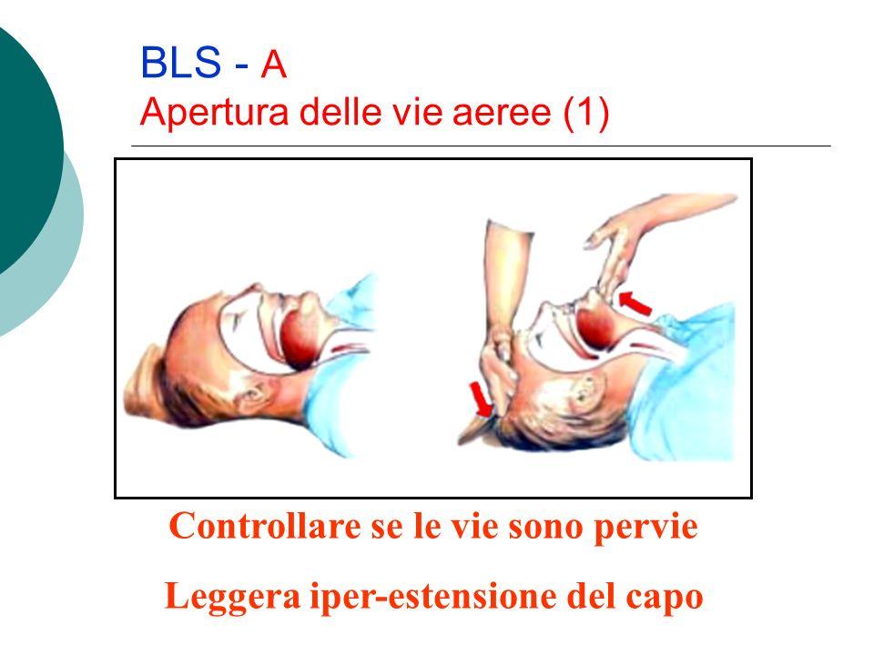 BLS - A Apertura delle vie aeree (1) Controllare se le vie sono pervie Leggera iper-estensione del capo