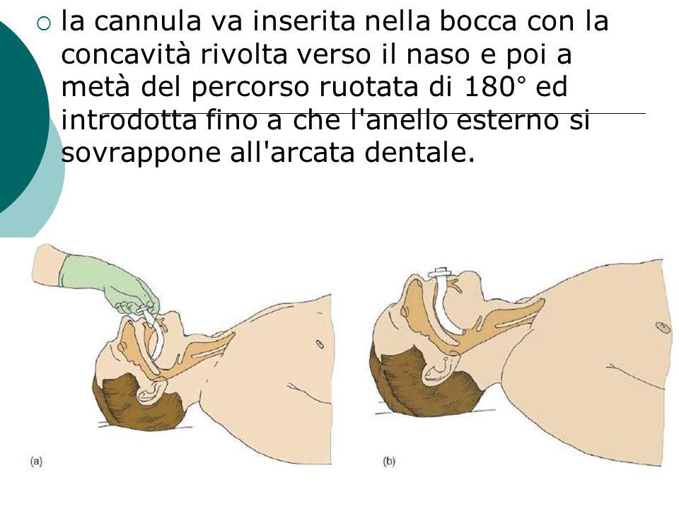 la cannula va inserita nella bocca con la concavità rivolta verso il naso e poi a metà del percorso ruotata di 180° ed introdotta fino a che l'anello
