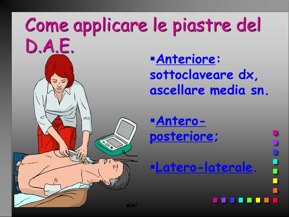 Come applicare le piastre del D.A.E. Anteriore: sottoclaveare dx, ascellare media sn. Antero- posteriore; Latero-laterale.