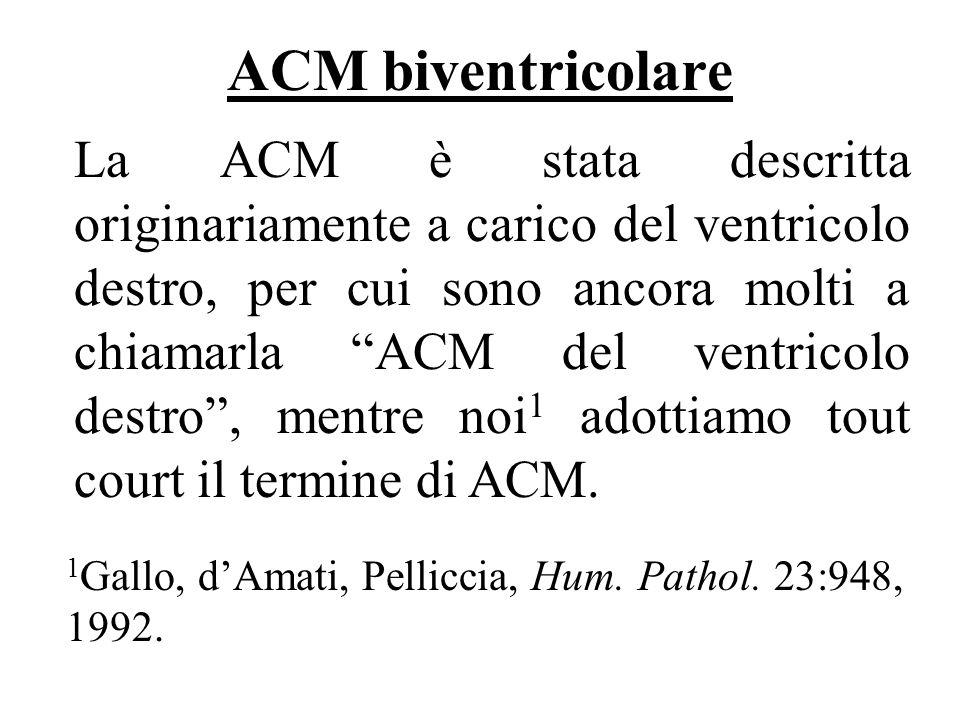 ACM biventricolare La ACM è stata descritta originariamente a carico del ventricolo destro, per cui sono ancora molti a chiamarla ACM del ventricolo d