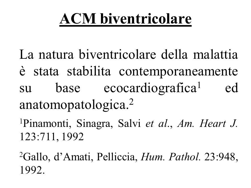 ACM biventricolare La natura biventricolare della malattia è stata stabilita contemporaneamente su base ecocardiografica 1 ed anatomopatologica. 2 16/