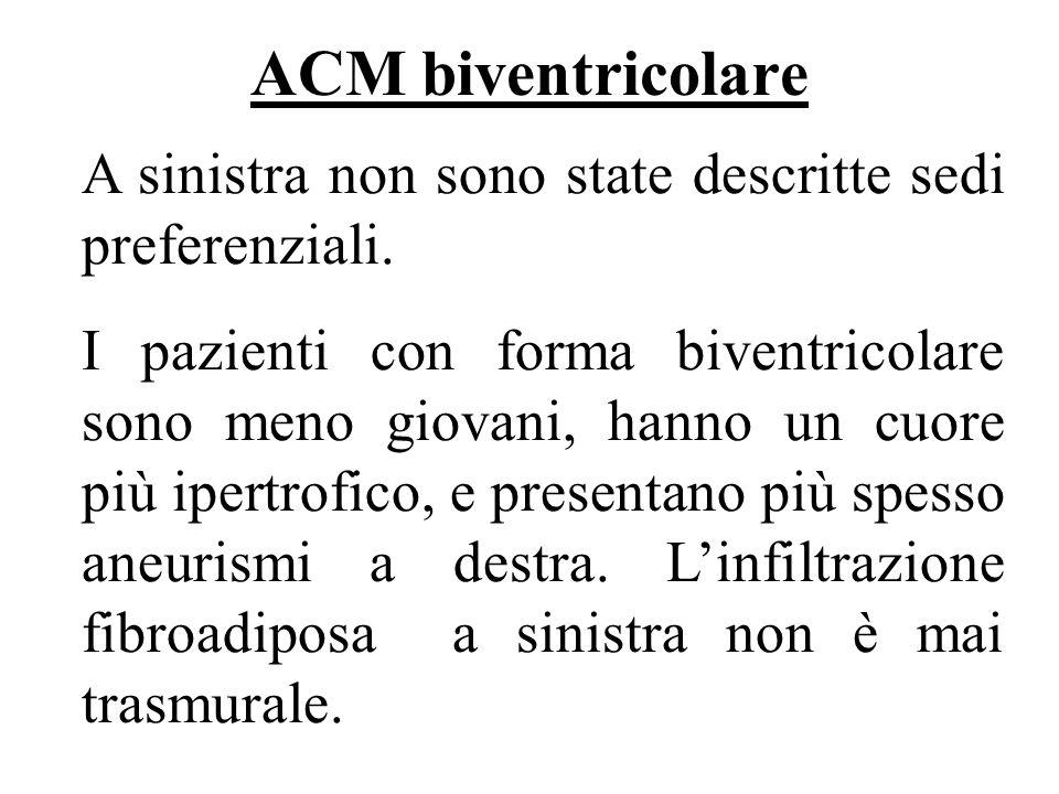 ACM biventricolare A sinistra non sono state descritte sedi preferenziali. I pazienti con forma biventricolare sono meno giovani, hanno un cuore più i